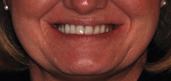 Existing Dentures