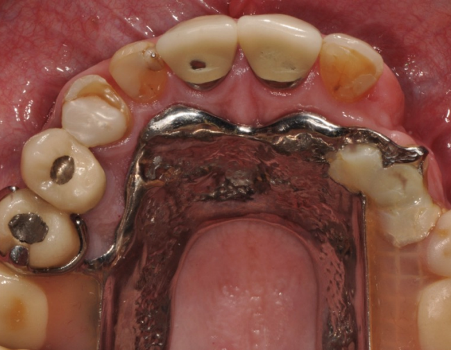Existing Conventional Partial Denture