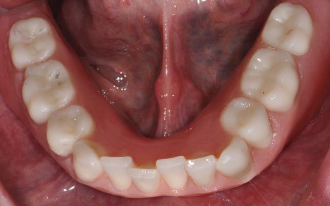 Lower Over-Denture Prosthetic