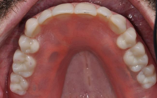 Upper OVer-Denture Prosthetic