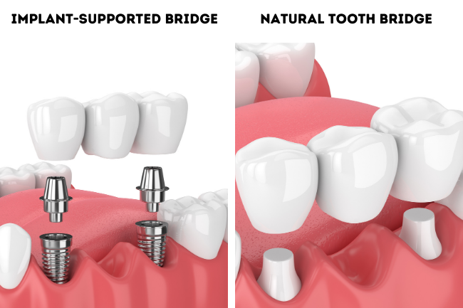 Dr. Charette in Louisville, KY can make a dental bridge using natural tooth bone or by using pontic implant supported bridges.