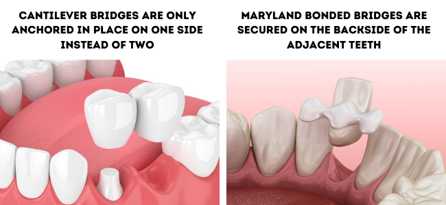 Dr. Charette offers his patients in Louisville, KY cantilever and maryland bonded bridges.