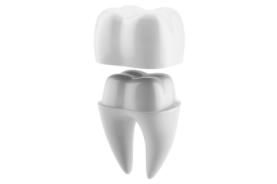 A dental crown is essentially a cap or a cover for a tooth that is used by our Louisville, KY office if it is fractured, damaged, discolored, or misshapen.