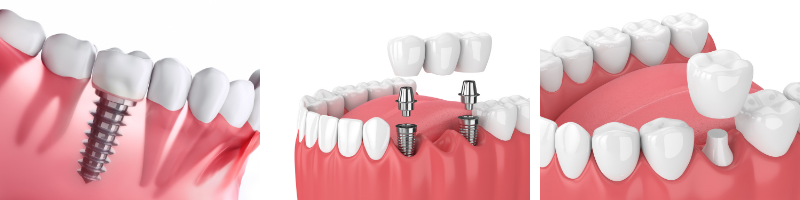 Charette Prosthodontics in Louisville, KY offers single and multiple implant dental crowns and natural crowns.