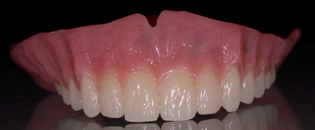 Dentures from Dr. Charette in Louisville, KY can help restore your smile's beauty and function.