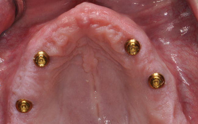 To secure permanent dentures, Dr. Charette in Louisville, KY uses several implants.