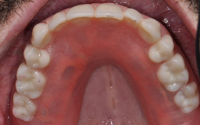 Permanent dentures can not be removed except by your Louisville, KY prosthodontist.