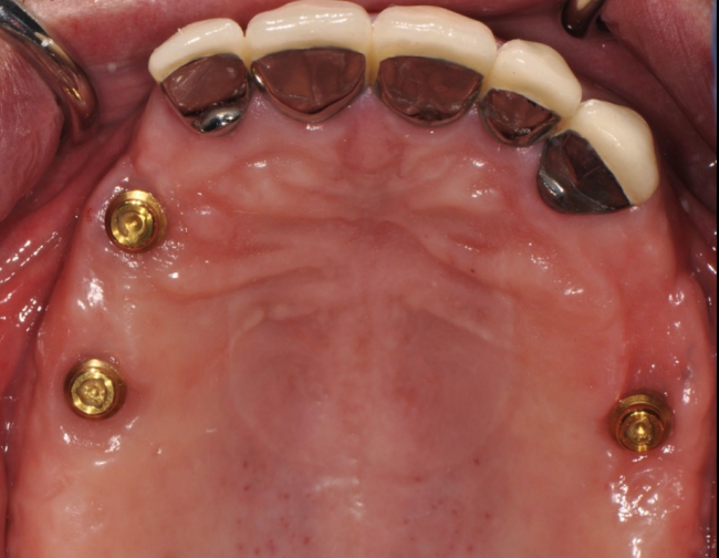 For more secure removable options, Dr. Charette in Louisville, KY will use dental implants.