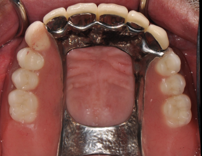 Getting implant removeable partial dentures at our Louisville, KY office can help replace missing teeth.