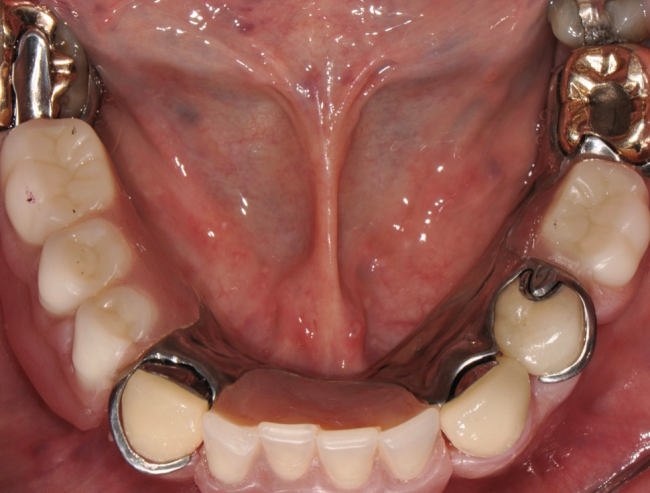 Removeable partial prosthetics need to be taken out periodically to allow the tissue to breathe.