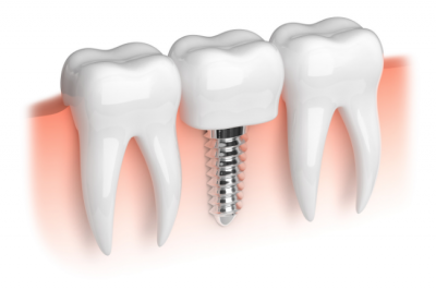 One of the procedure involved in a full mouth reconstruction in Louisville, KY can be getting dental implants.