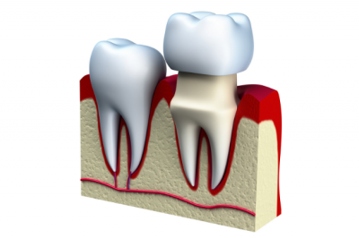 During your full mouth rehabiliation, your prosthodontist may utilize dental crowns.