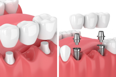 If you have a missing tooth, Dr. Charette in Louisville, KY may use a dental bridge as part of your full mouth reconstruction.