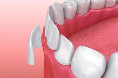 If you have teeth that are discolored or misshapen, Dr. Charette in Louisville, KY may use veneers to fix them.