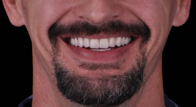 The overall benefit to getting a full mouth reconstruction from Charette Prosthodontics in Louisville, KY is a smile that is beautiful and functional.