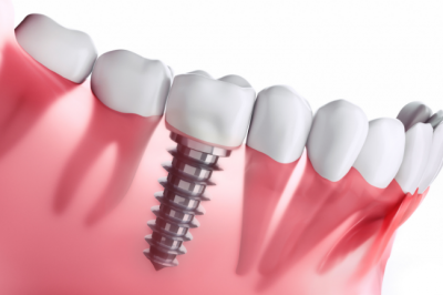 Charette Prosthodontics offers dental implants to patients in Louisville, KY.