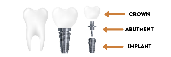 There are three parts to dental implants that our Louisville, KY office uses.