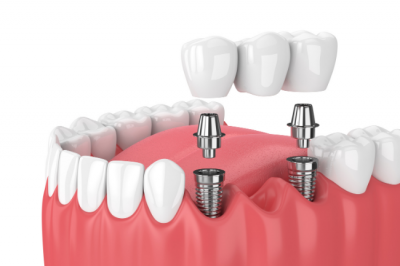 Our Louisville, KY office uses dental implants to secure dental bridges.